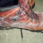 shoes covered in mould